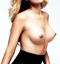 Druhou nej��dan�j�� plastikou je zv�t�en� prsou