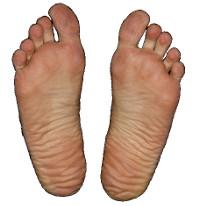 Jak na deformace nohou